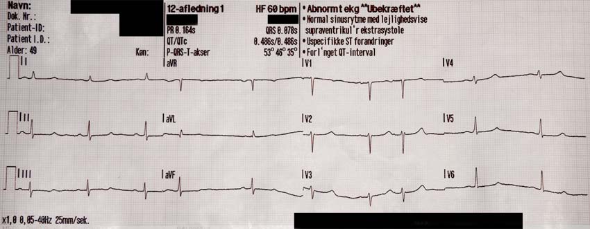 ventrikulære ekstrasystoler ekg